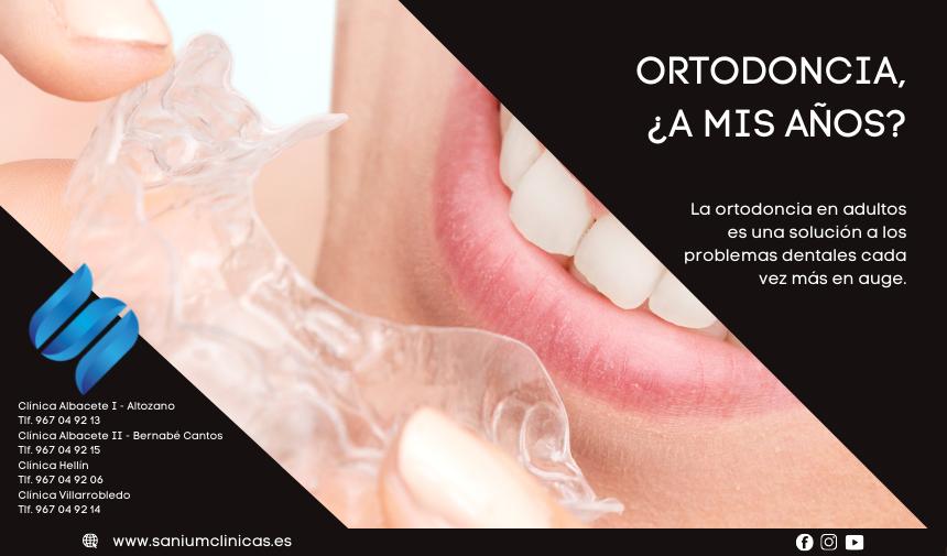 Ortodoncia, ¿a mis años?